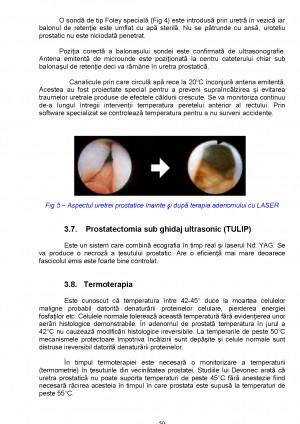 adenomul de prostata referata